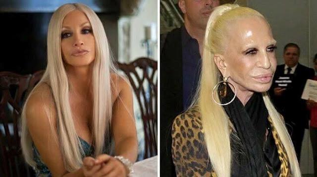 Donatella Versace Plastic Surgery Gone Wrong