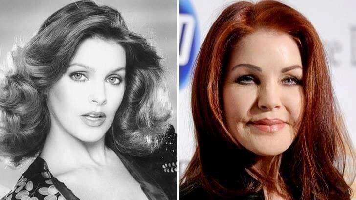 Priscilla Presley Plastic Surgery Gone Wrong