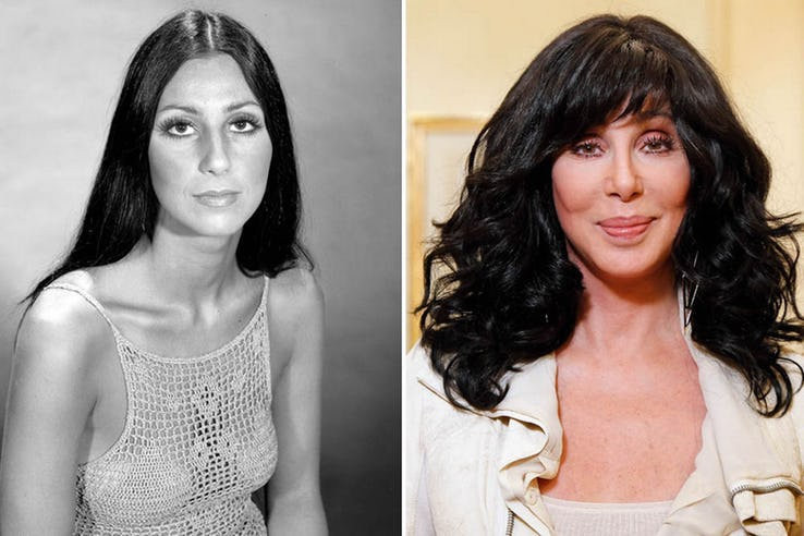 Cher Most Expensive Celebrity Transformations