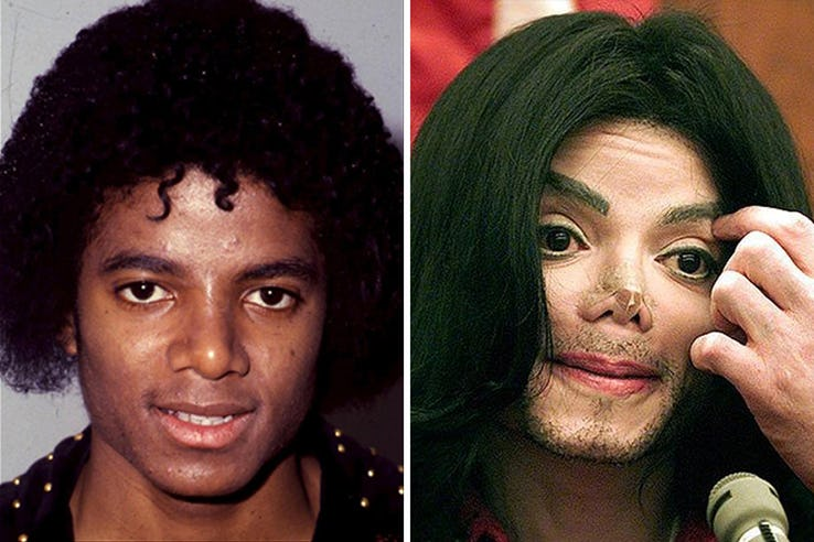 Michael Jackson Most Expensive Celebrity Transformations
